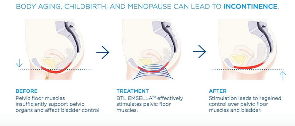 Body Aging, Childbirth and Menopause can lead to Incontinence