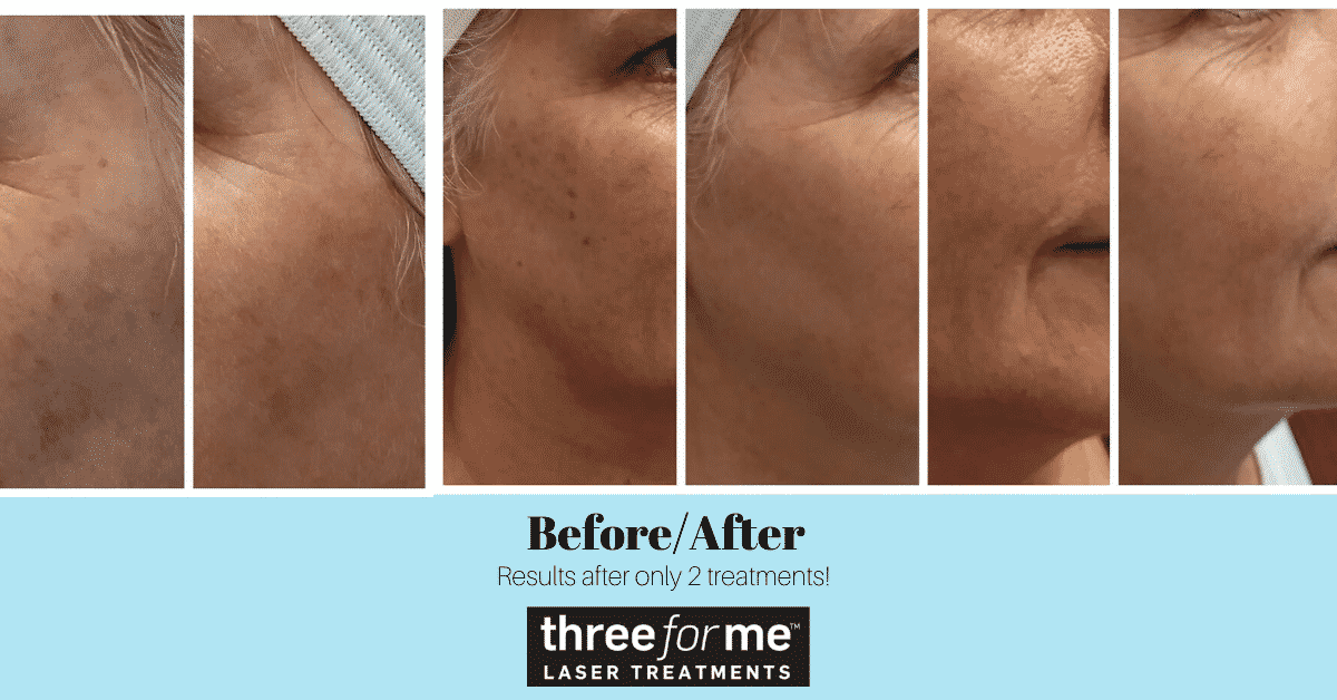 Before and After Laser Treatments