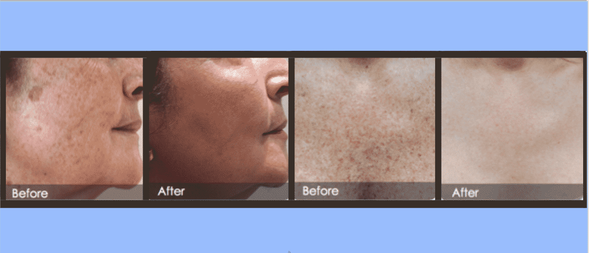 Before and After IPL Photofacial