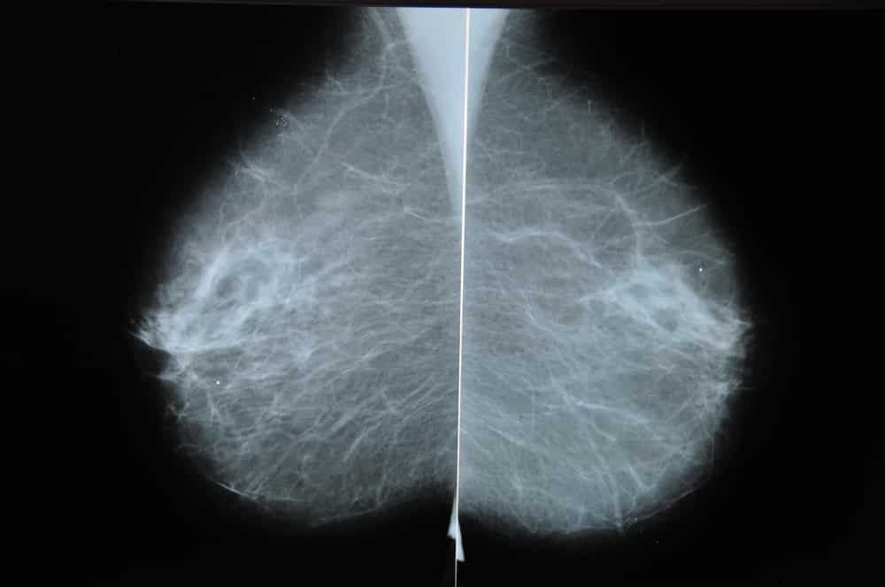 Expanded Coverage for Diagnostic Mammograms